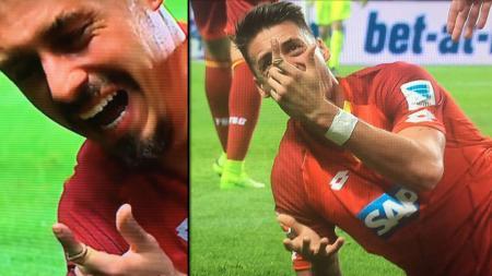 Striker Hoffenheim, Sandro Wagner memperlihatkan kondisi jari telunjuknya yang patah. - INDOSPORT