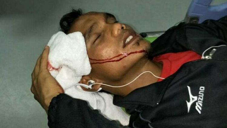 Pemain Semen Padang, Riko Simanjuntak menjadi korban pelemparan oknum suporter. Copyright: Taufik Hidayat/INDOSPORT
