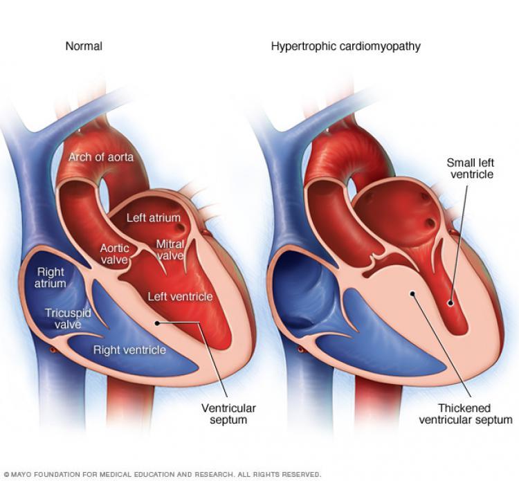 Penyakit jantung bernama Hypertrophic Obstructive Cardiomyopathy, membuat dinding jantung menebal. Copyright: Internet/mayoclinic.org