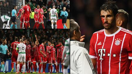 Celtic vs Munchen. - INDOSPORT