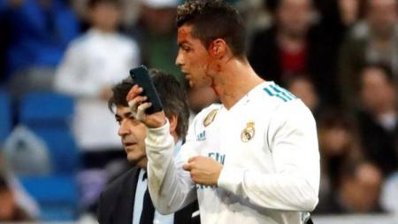 Cristiano Ronaldo saat berdarah-darah melawan Deportivo. - INDOSPORT