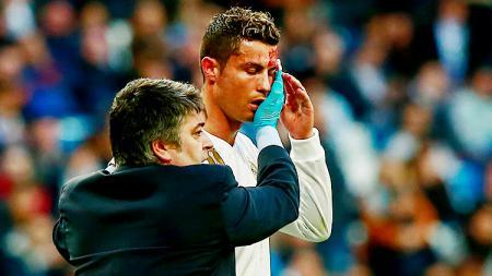 Tim medis menangani Cristiano Ronaldo yang mengalami pendarahan di bagian kepalanya. - INDOSPORT