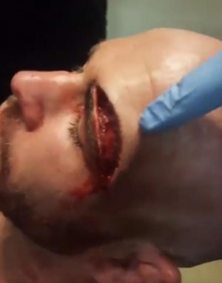 Kepala  petarung MMA Jack Mason, yang luka seperti di silet Copyright: Express.co.uk