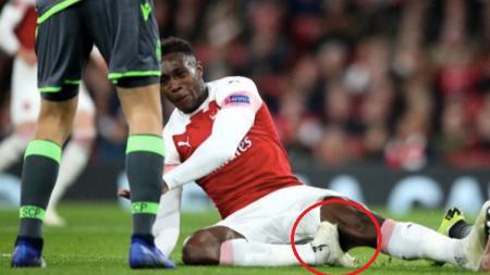 Danny Welbeck mengalami cedera saat membela Arsenal melawan Sporting Lisbon. - INDOSPORT