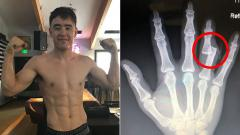 Indosport - Harvey Park mengalami cedera horor di tangannya