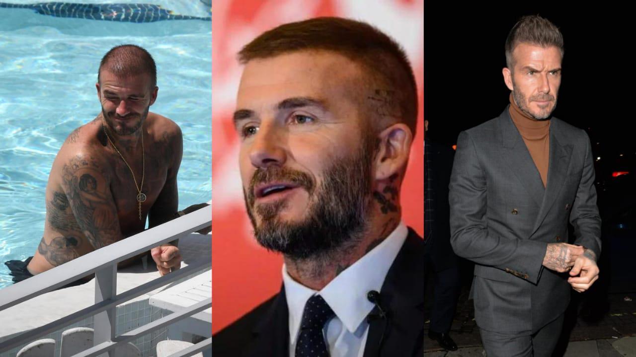 David Beckham diisukan melakukan transpalasi rambut Copyright: The Sun