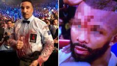 Indosport - Jack mengalami cedera parah di dahinya yang juga membuat pakaian wasit Tony Weeks berlumuran darah.