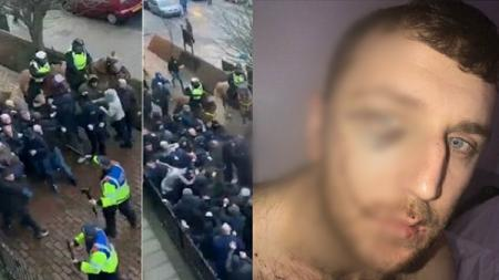 Jason Burns harus mengalami luka sayatan di wajahnya saat kerusuhan Millwall vs Everton. - INDOSPORT