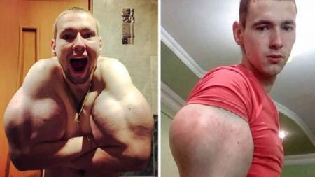 Kirill Tereshin, binaragawan yang terancam cacat - INDOSPORT