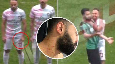 Pemain asal Turki yang dilukai dengan pisau oleh rivalnya - INDOSPORT