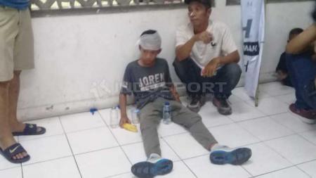 Salah satu bocah jadi korban pelemparan aksi suporter PSS Sleman vs Arema FC. - INDOSPORT