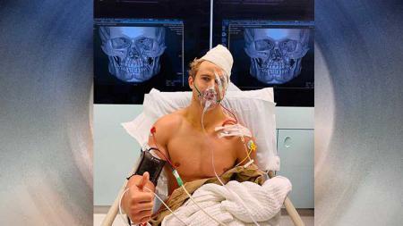 Petarung Mixed Martial Arts (MMA), Sage Northcutt menderita delapan patah tulang usai dipermalukan oleh Cosmo Alexandre - INDOSPORT