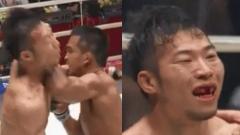 Indosport - Petarung MMA Jepang, Yusaku Nakamura memerlukan penanganan gigi yang lumayan serius akibat hantaman siku dari Thanongsaklek Chuwattana.