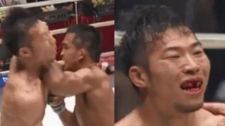 Petarung MMA Jepang, Yusaku Nakamura memerlukan penanganan gigi yang lumayan serius akibat hantaman siku dari Thanongsaklek Chuwattana. - INDOSPORT