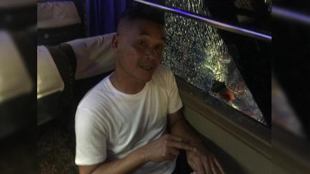 Pelatih Persiraja Banda Aceh Hendro Susilo terkena serpihan kaca pasca bus yang dilempari batu oleh terduga suporter Perserang di Liga 2 2019, Senin (02/09/19). - INDOSPORT