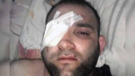 Mantan petarung Mixed Martial Arts (MMA) asal Rusia, Abdul Zakharov nyaris kehilangan matanya usai ditangkap polisi lantaran tindakan asusila kepada bocah. - INDOSPORT