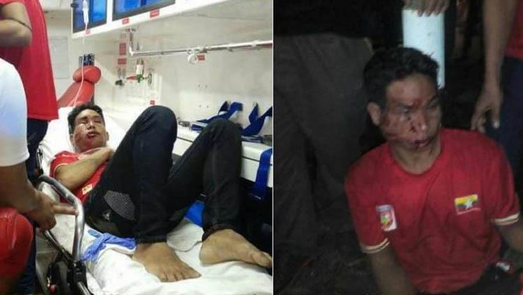 Supoter Myanmar babak belur usai mendapat serangan dari supoter Malaysia di ajang SEA Games 2017. Copyright: news.zing.vn