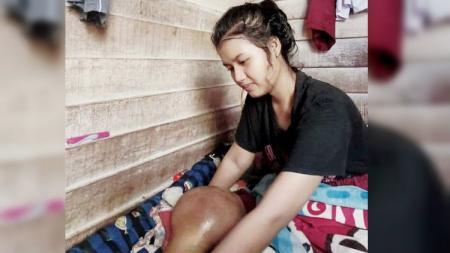 Riska Ramadila, atlet voli andalan sekolah yang terkena tumor di lutut kakinya. - INDOSPORT