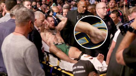 Conor McGregor ditandu keluar karena mengalami insiden patah kaki. - INDOSPORT