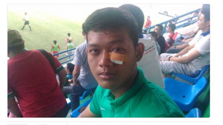 Kondisi kiper timnas U-19, Muhammad Riyandi yang cedera karena berbenturan dengan pemain Myanmar, tahun lalu. Copyright: © INTERNET
