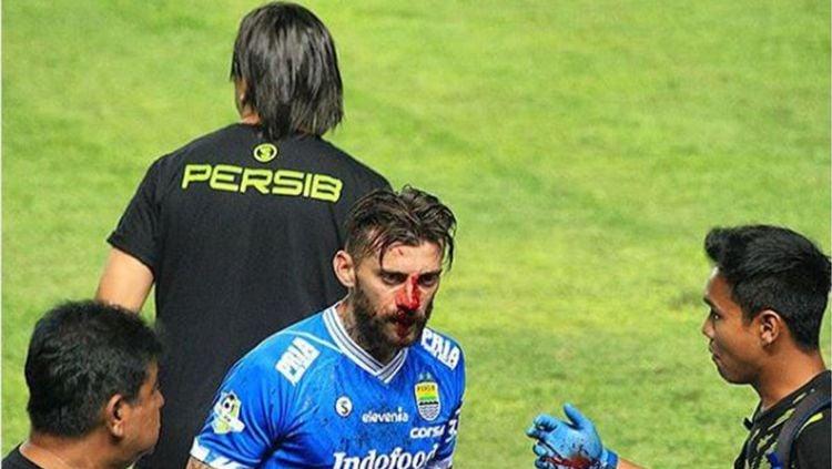 Bojan Malisic mengalami pendarahan. Copyright: © Instagram/budihermawan282