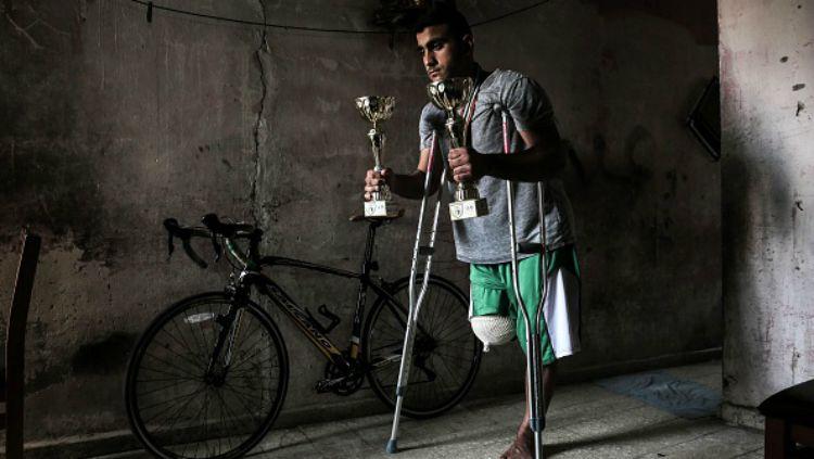 Alaa Al Daly Atlet Sepeda Palestina Yang Kakinya Diamputasi Karena Tertembak Tentara Israel