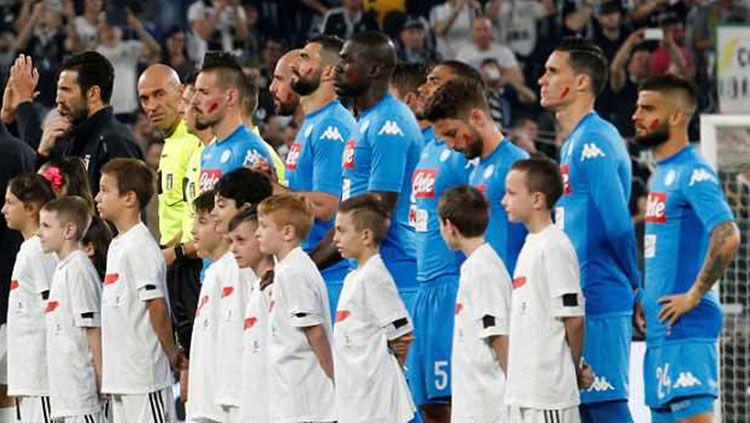 Paoulo Dybala menggunakan strip merah di pipinya. Copyright: © Daily Mail