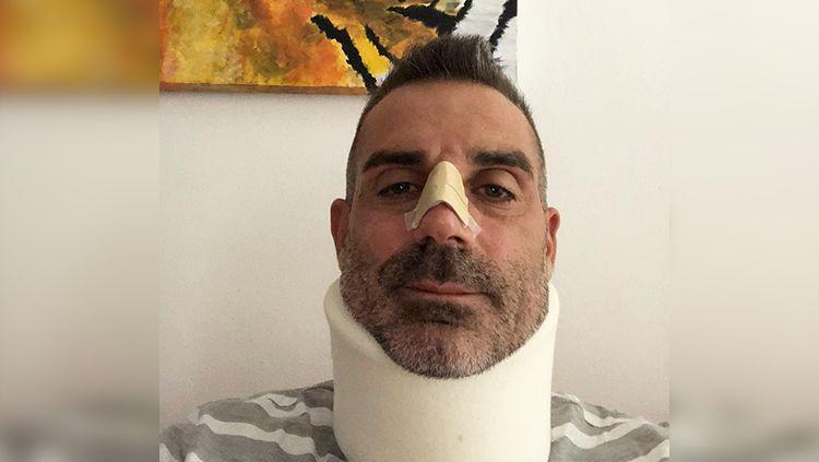 Stefano Sorrentino mengalami retak tulang di bagian hidung. Copyright: © INDOSPORT