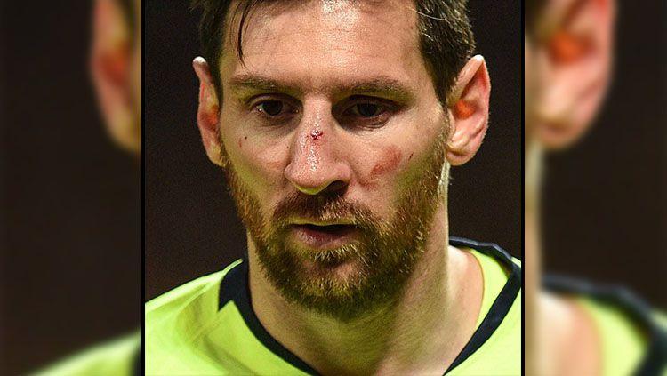 Hidung Lionel Messi berdarah setelah Bertabrakan dengan Smalling (11/4/2019). Copyright: © LINE/Extra Time