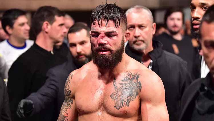 Atlet MMA, Mike Perry, yang hidungnya patah usai terhantam dengkul lawan. Foto: Jason Silva-USA TODAY Sports Copyright: © Jason Silva-USA TODAY Sports
