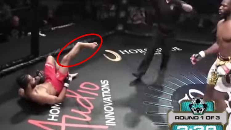 Petarung Mix Martial Arts (MMA), Jonathan King mengalami cedera parah nan mengerikan di bagian kakinya usai mencoba memberikan serangan pada rivalnya. Copyright: © youtube.com